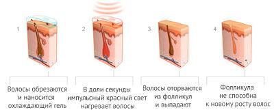 принцип лазера