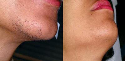 эпиляция бороды