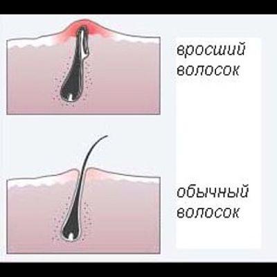 вросший волосок