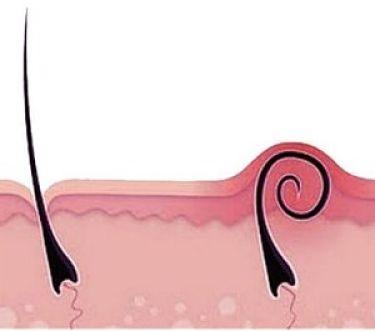 волосы после эпиляции